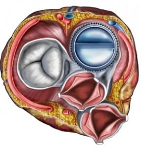 valve prosthesis